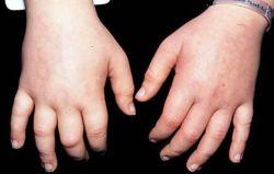 Retentia de apa: simptome si tratamente | menopauza.bucovinart.ro