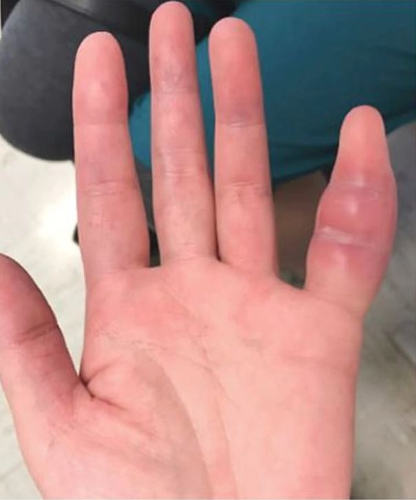 boala articulației calcaneale