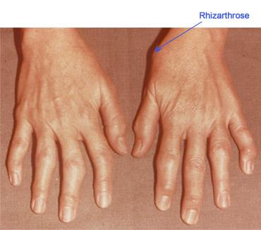 artroza tratamentului degetelor cum să tratezi durerile articulare cu zahăr